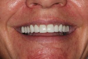 Dentist Vienna VA
