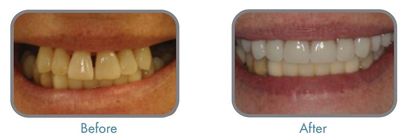 Vienna-VA-Veneers-Dentist