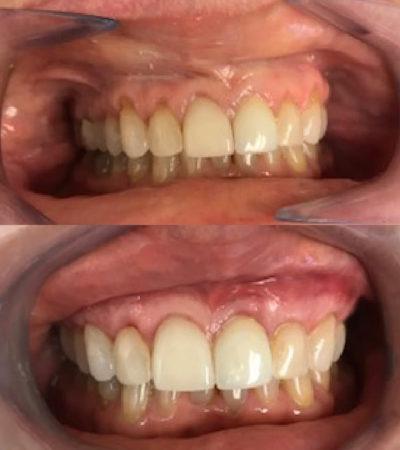 Vienna, VA Cosmetic Dentist