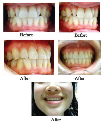 Vienna VA Dentist